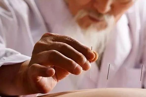 剖析针灸的三大功效及相关注意事项