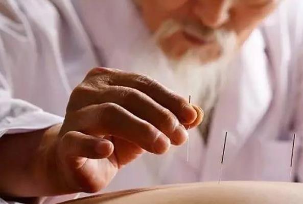零基础自学针灸,重庆龙人学校分享四点针灸练习心得